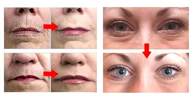 remedios naturales para eliminar las arrugas de la cara, ojos y boca
